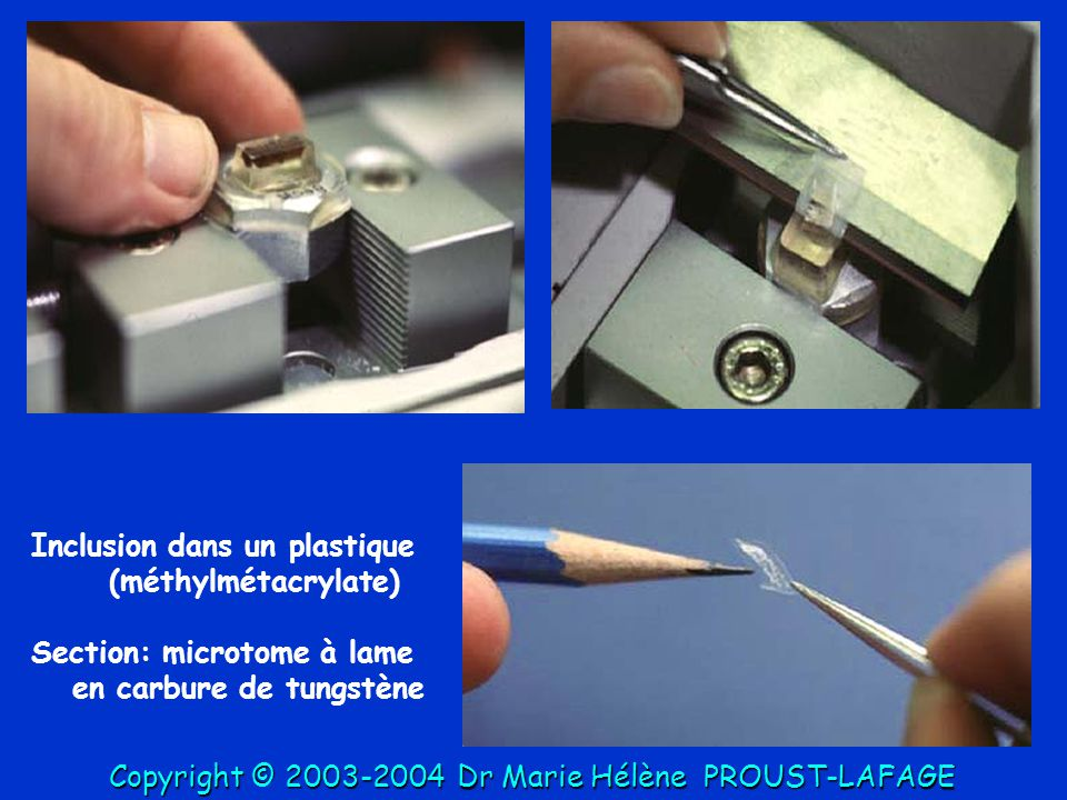 Inclusion dans un plastique (méthylmétacrylate)