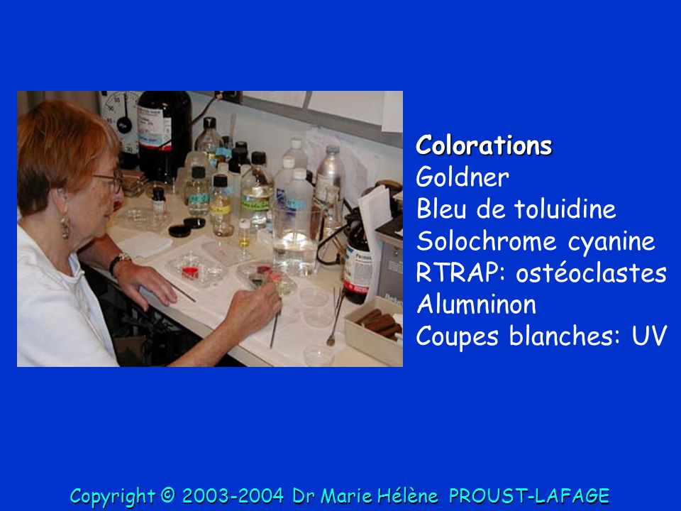 Colorations Goldner Bleu de toluidine Solochrome cyanine