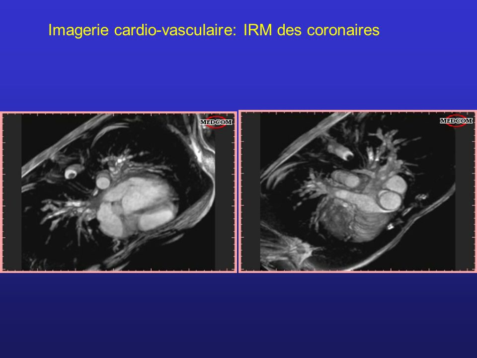 Imagerie cardio-vasculaire: IRM des coronaires