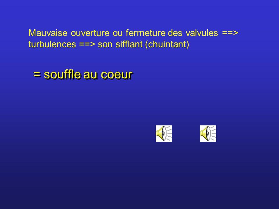 Mauvaise ouverture ou fermeture des valvules ==> turbulences ==> son sifflant (chuintant)