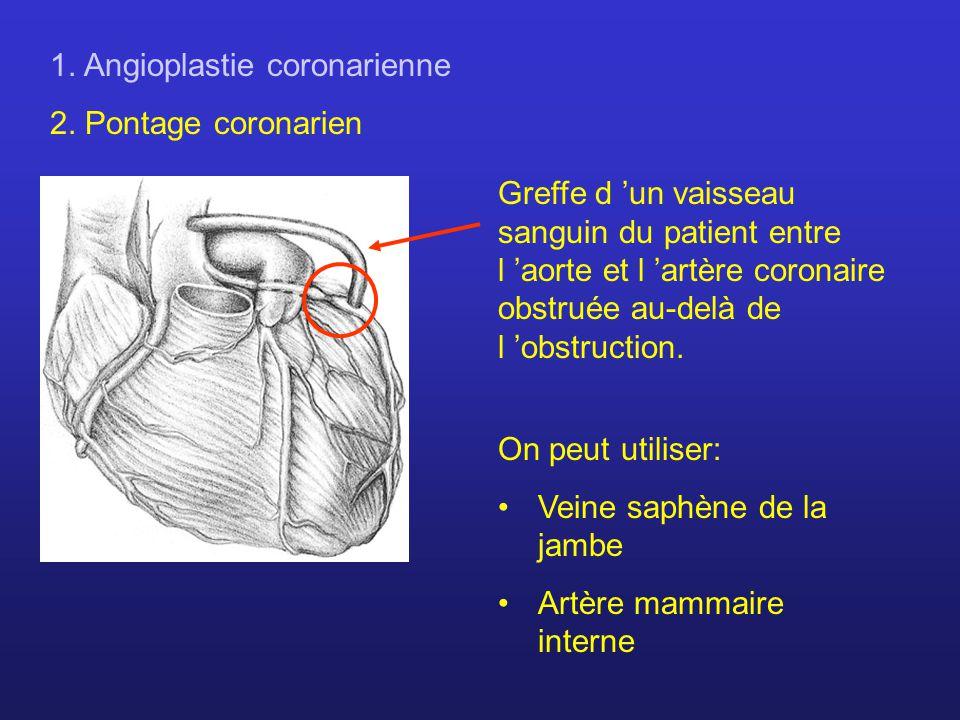 1. Angioplastie coronarienne