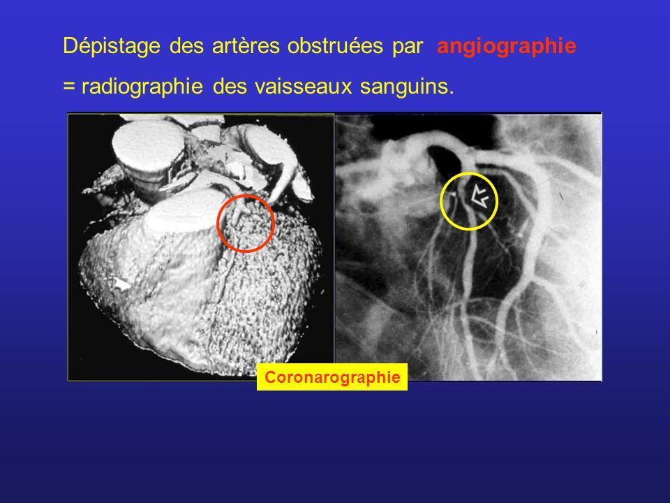 Dépistage des artères obstruées par angiographie