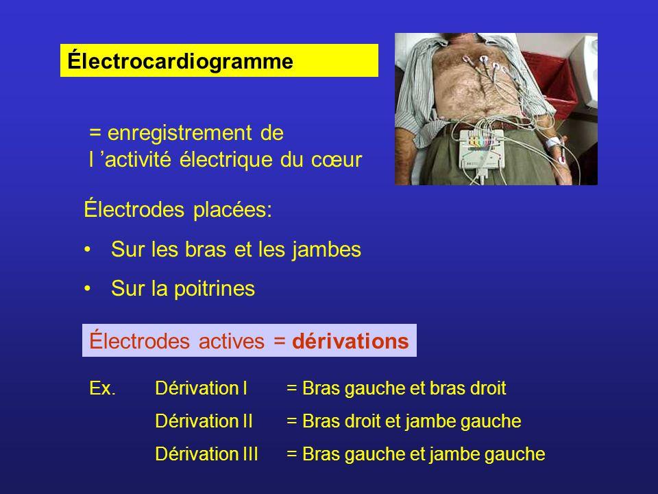 = enregistrement de l 'activité électrique du cœur