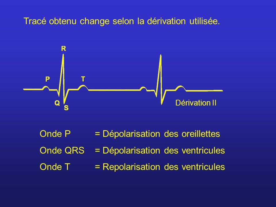 Tracé obtenu change selon la dérivation utilisée.