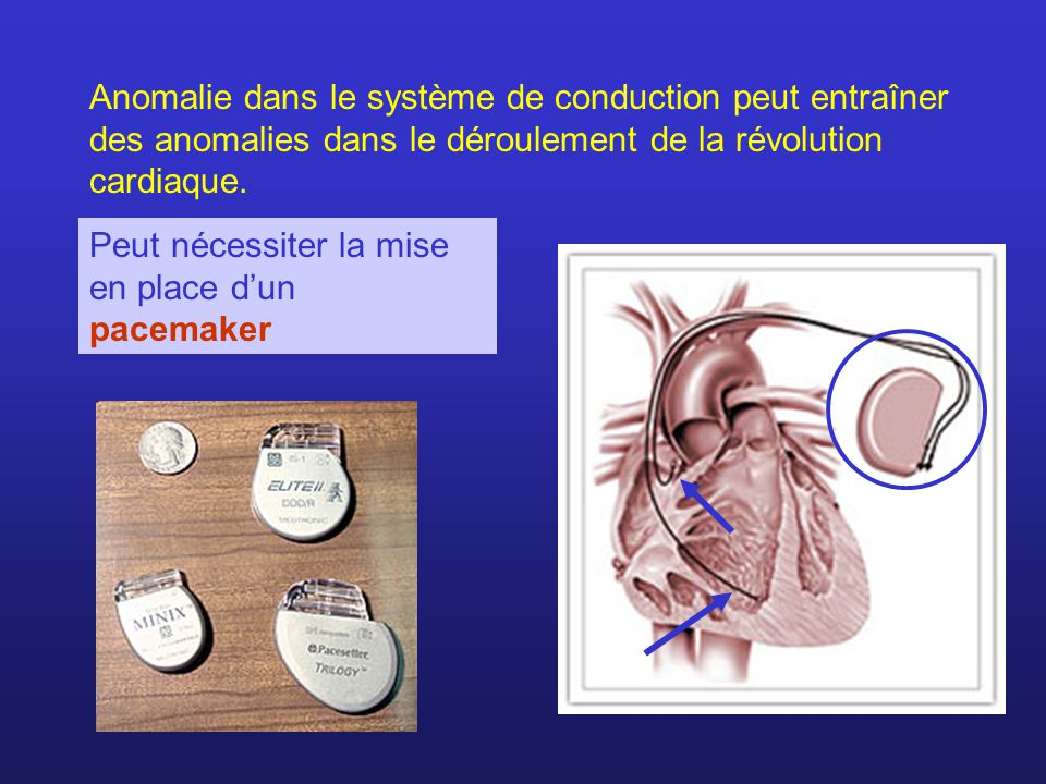 Anomalie dans le système de conduction peut entraîner des anomalies dans le déroulement de la révolution cardiaque.