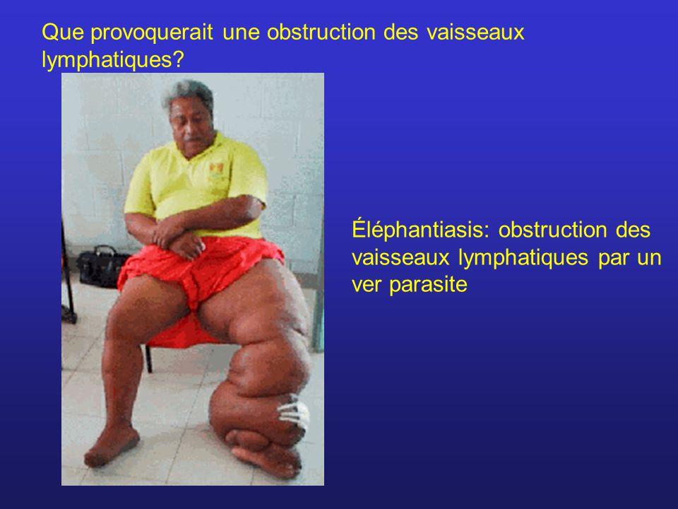 Que provoquerait une obstruction des vaisseaux lymphatiques