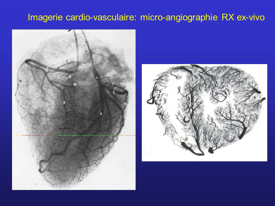 Imagerie cardio-vasculaire: micro-angiographie RX ex-vivo