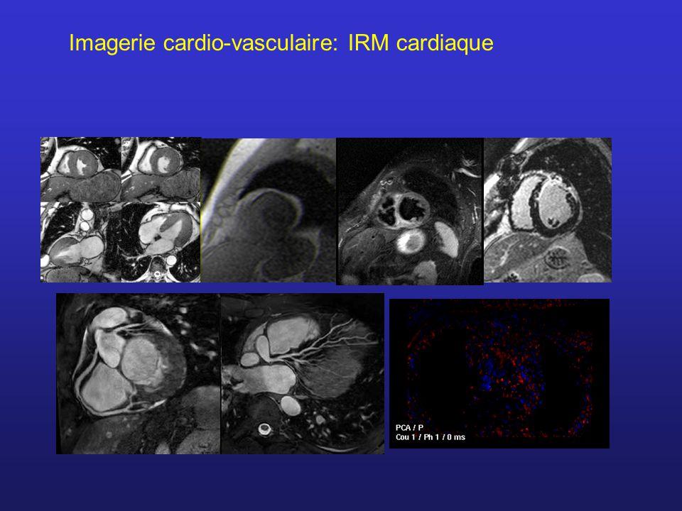 Imagerie cardio-vasculaire: IRM cardiaque