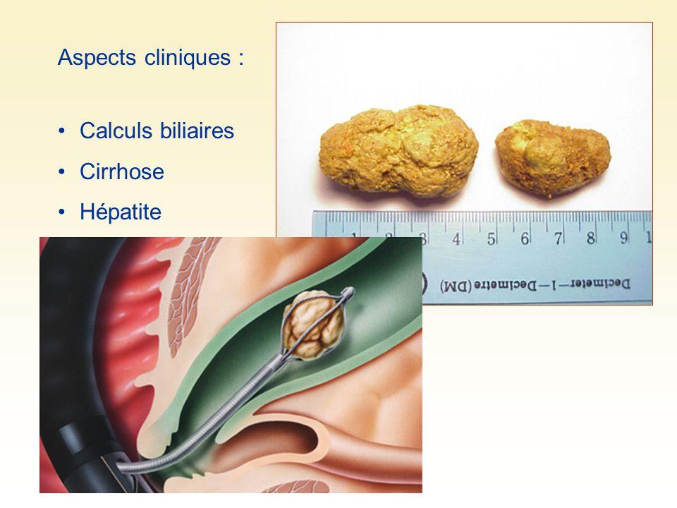 Aspects cliniques : Calculs biliaires Cirrhose Hépatite