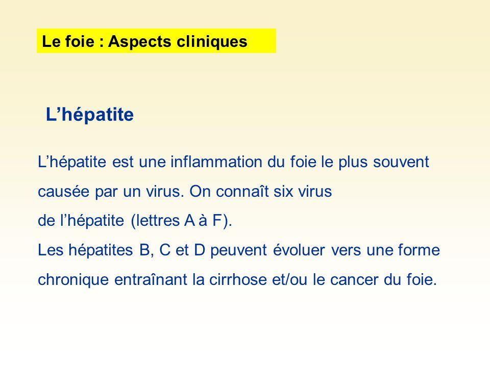 L'hépatite Le foie : Aspects cliniques