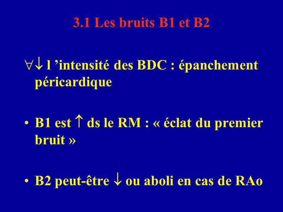  l 'intensité des BDC : épanchement péricardique