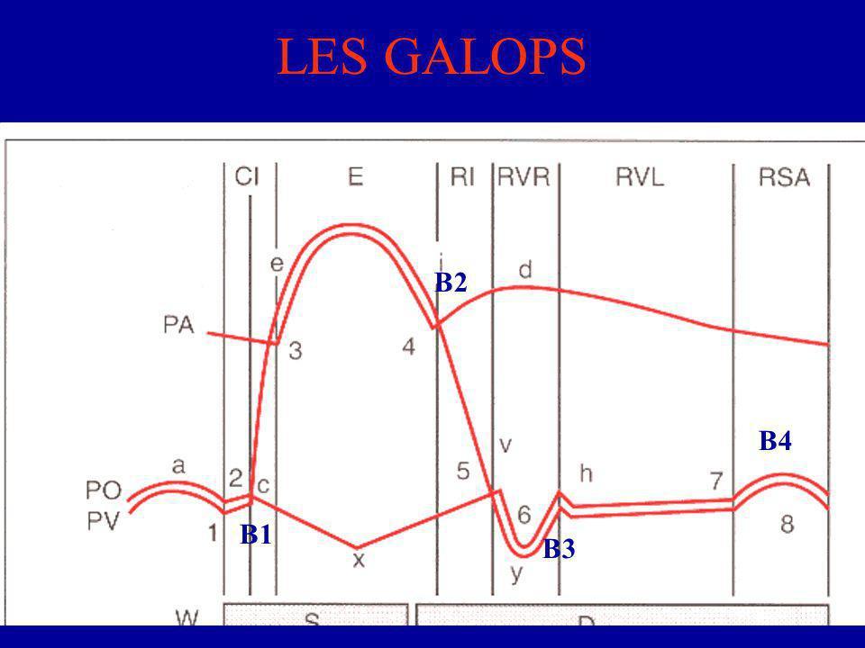 LES GALOPS B2 B4 B1 B3