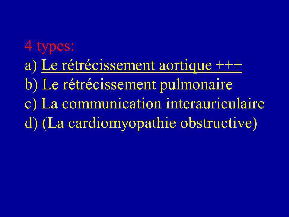 4 types: a) Le rétrécissement aortique +++ b) Le rétrécissement pulmonaire c) La communication interauriculaire d) (La cardiomyopathie obstructive)