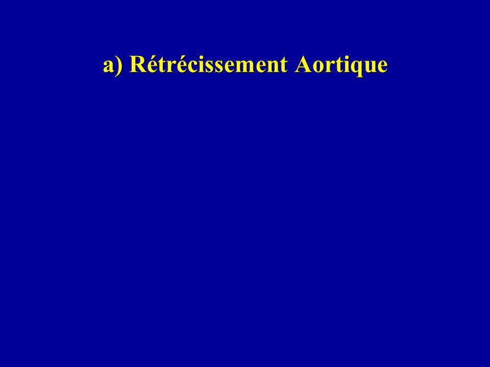 a) Rétrécissement Aortique