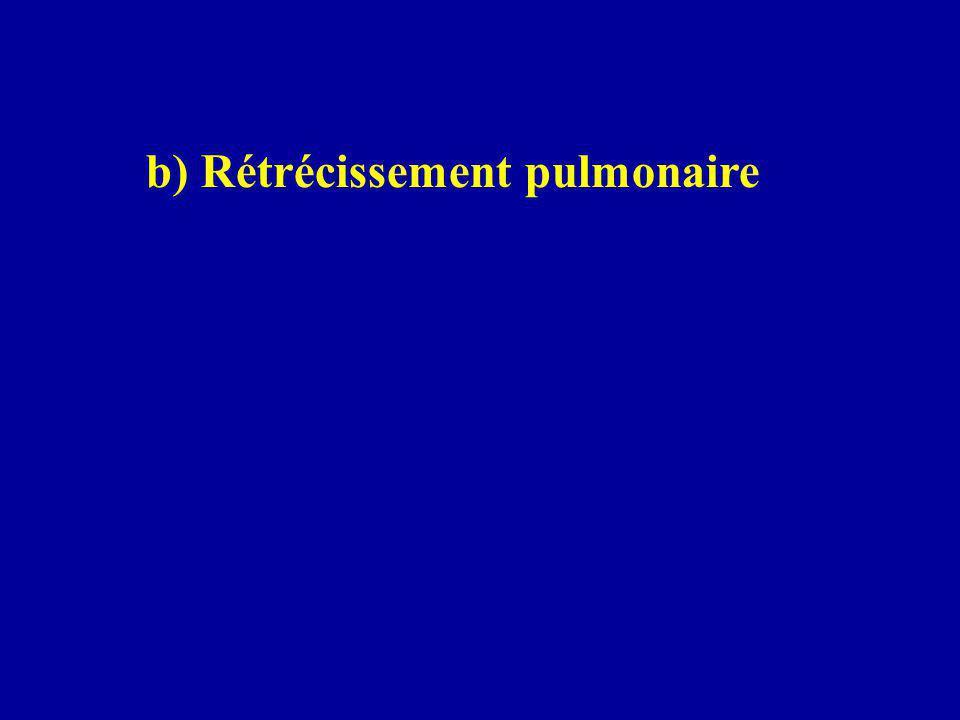 b) Rétrécissement pulmonaire