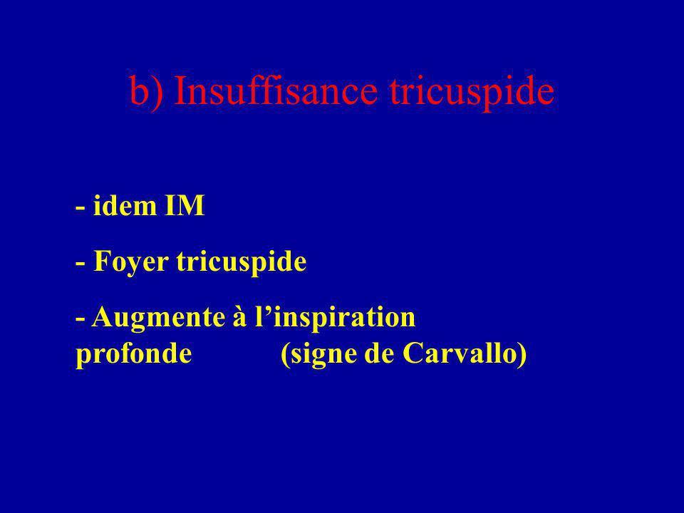 b) Insuffisance tricuspide