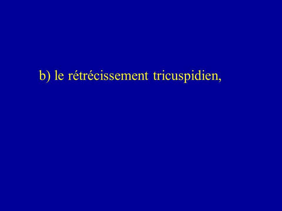 b) le rétrécissement tricuspidien,