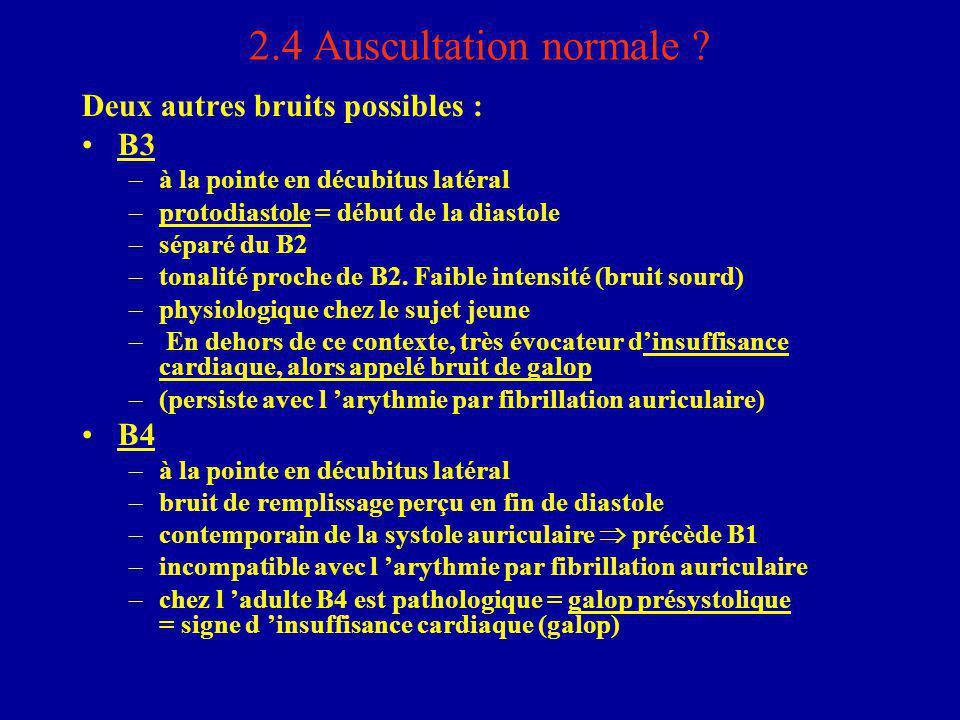2.4 Auscultation normale Deux autres bruits possibles : B3 B4