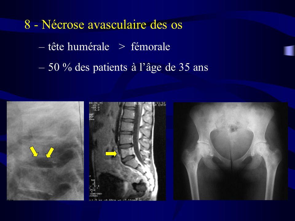 8 - Nécrose avasculaire des os