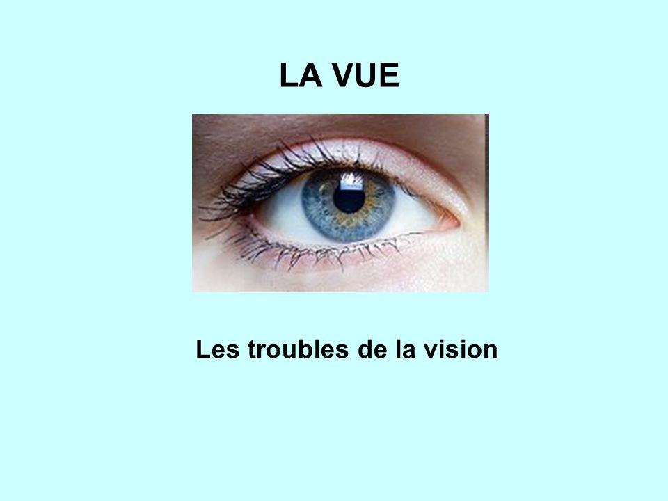 Les troubles de la vision