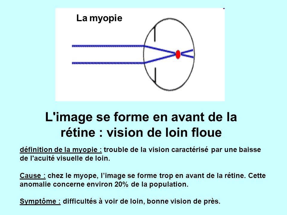 L image se forme en avant de la rétine : vision de loin floue