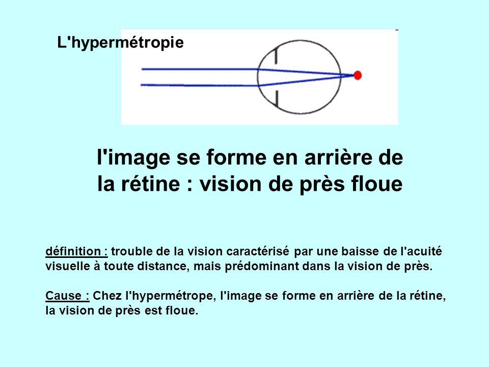 l image se forme en arrière de la rétine : vision de près floue