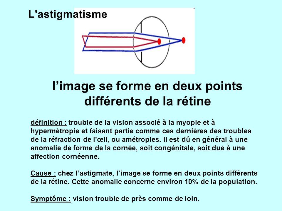 l'image se forme en deux points différents de la rétine