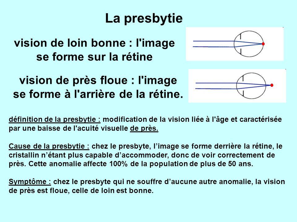 La presbytie vision de loin bonne : l image se forme sur la rétine