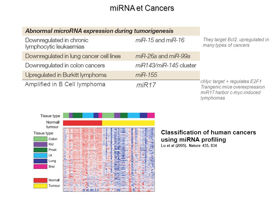 miRNA et Cancers miR17 Amplified in B Cell lymphoma