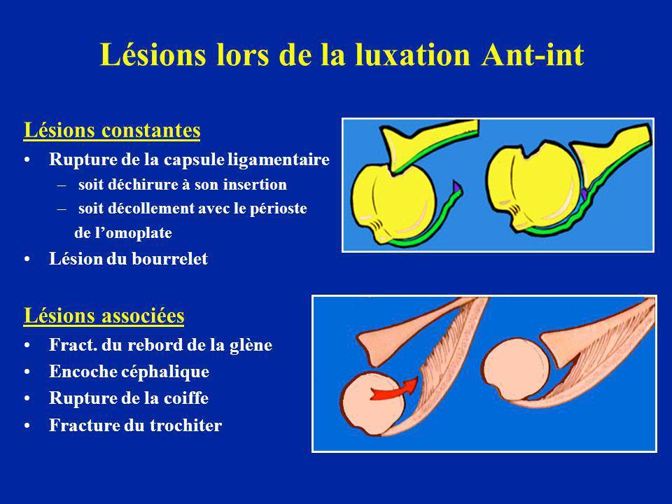 Lésions lors de la luxation Ant-int