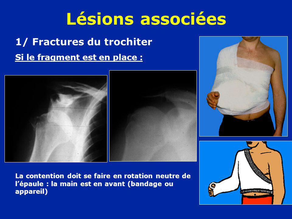 Lésions associées 1/ Fractures du trochiter