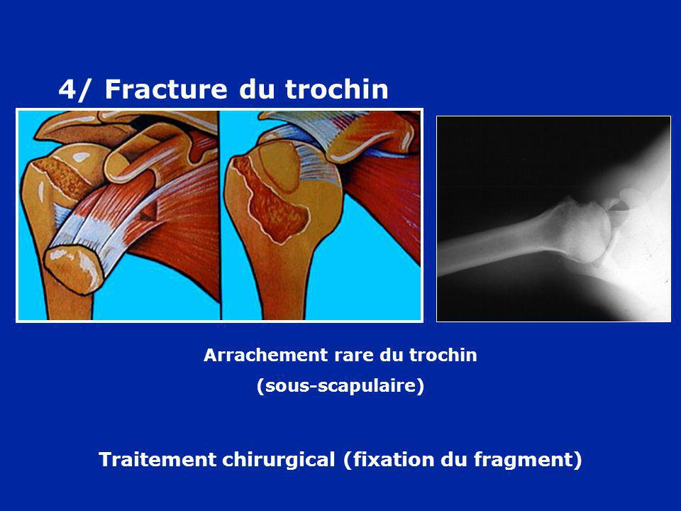 4/ Fracture du trochin Traitement chirurgical (fixation du fragment)