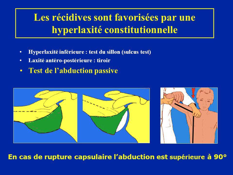 Les récidives sont favorisées par une hyperlaxité constitutionnelle