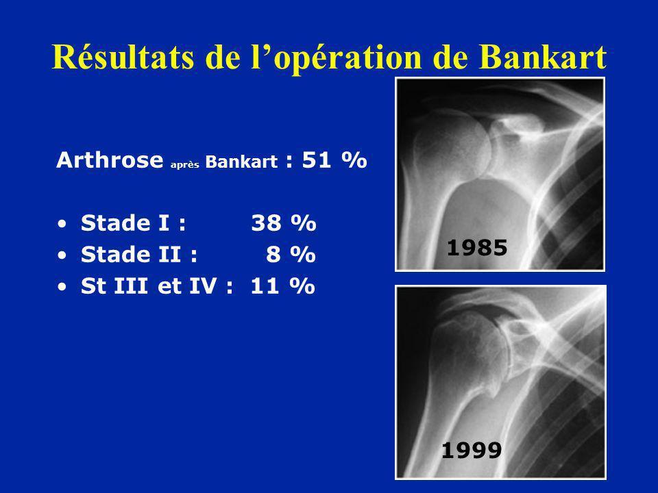 Résultats de l'opération de Bankart