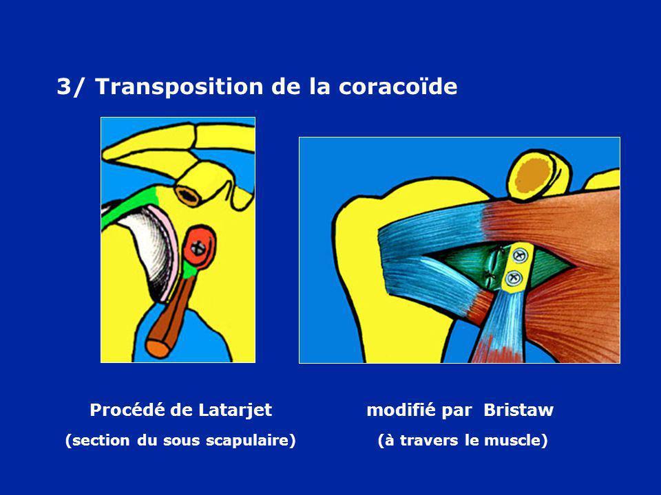 3/ Transposition de la coracoïde
