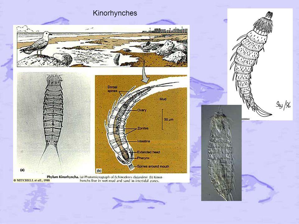 Kinorhynches