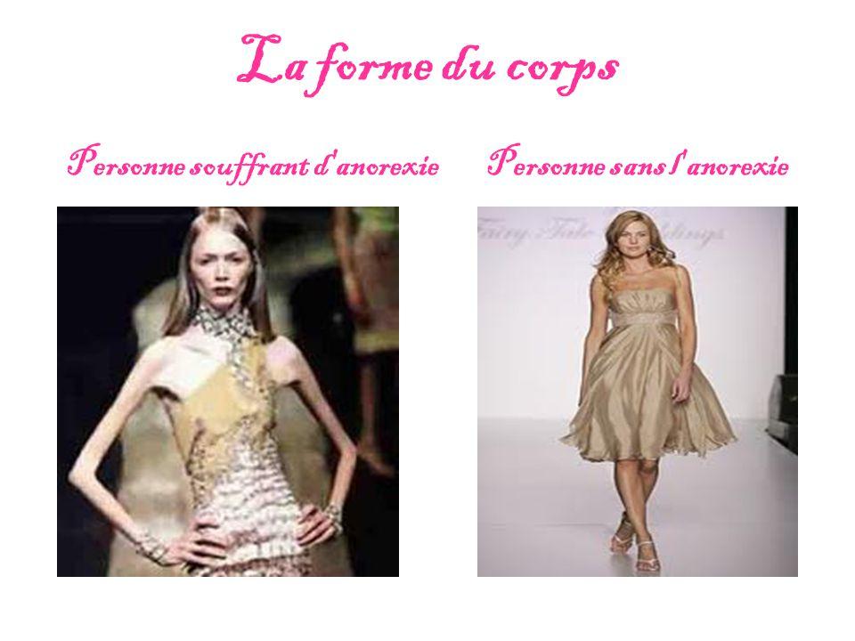 La forme du corps Personne souffrant d anorexie