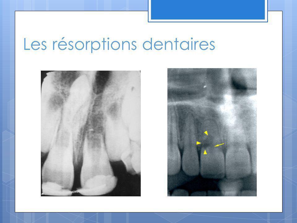 Les résorptions dentaires