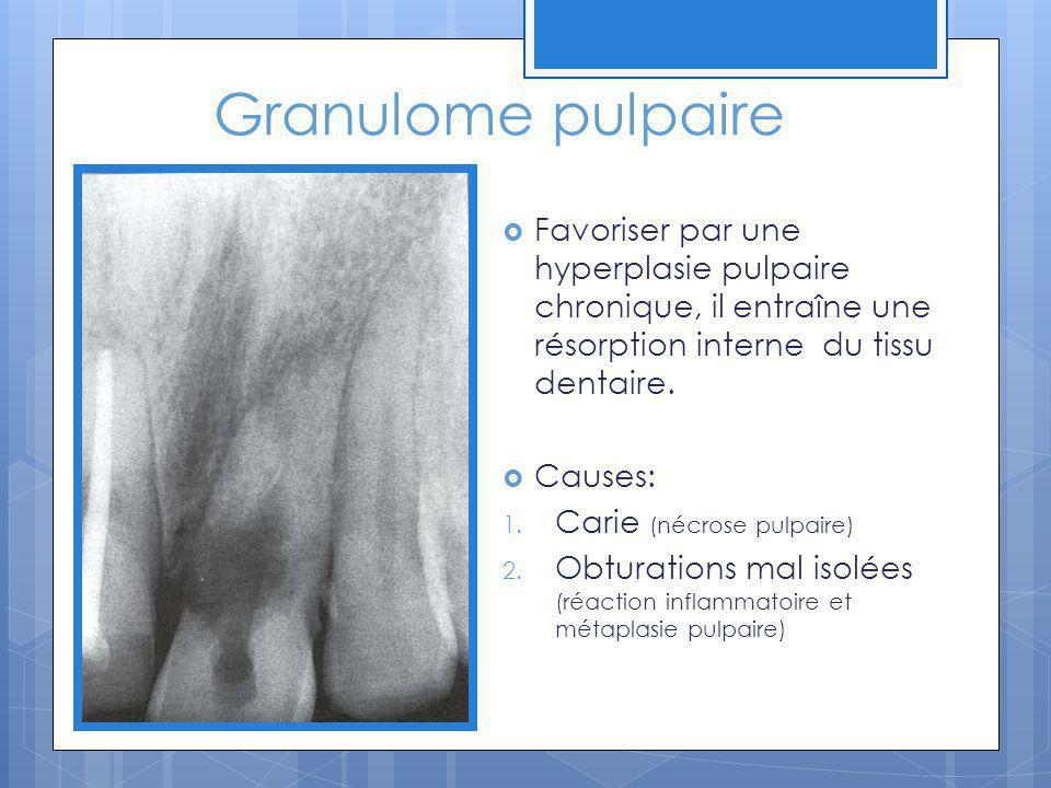 Granulome pulpaire Favoriser par une hyperplasie pulpaire chronique, il entraîne une résorption interne du tissu dentaire.