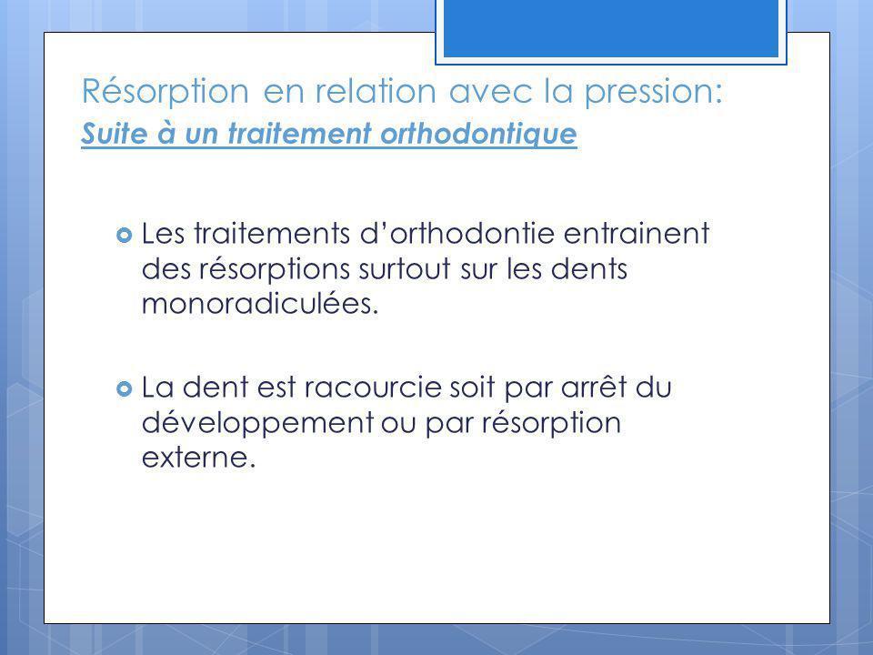 Résorption en relation avec la pression: Suite à un traitement orthodontique