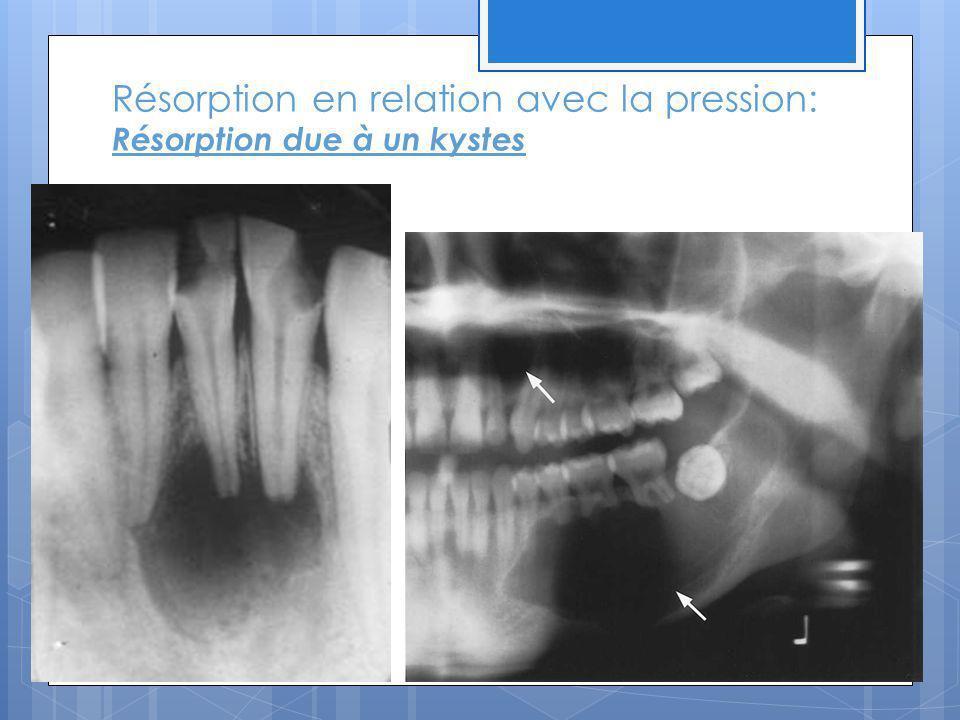 Résorption en relation avec la pression: Résorption due à un kystes