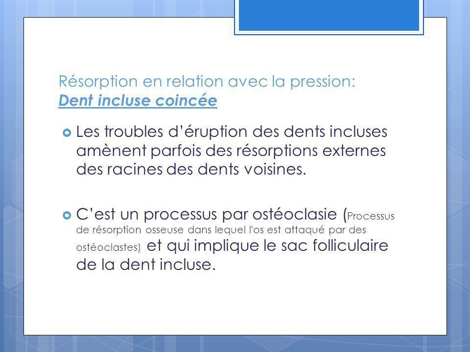 Résorption en relation avec la pression: Dent incluse coincée