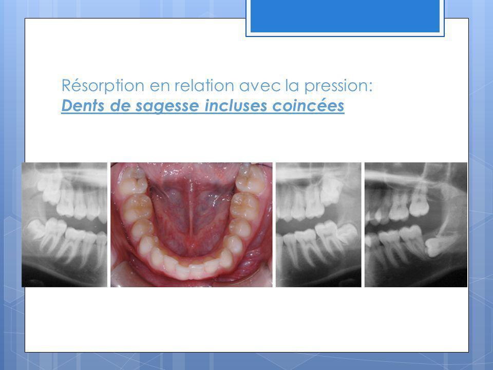 Résorption en relation avec la pression: Dents de sagesse incluses coincées