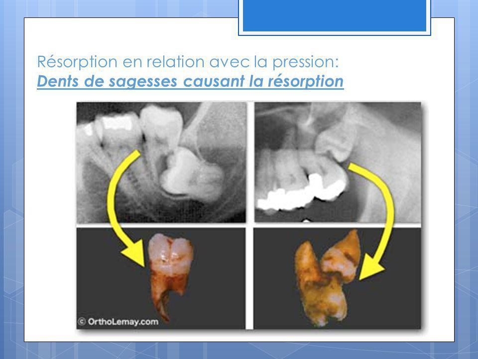 Résorption en relation avec la pression: Dents de sagesses causant la résorption
