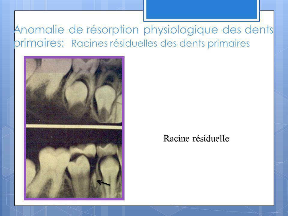 Anomalie de résorption physiologique des dents primaires: Racines résiduelles des dents primaires