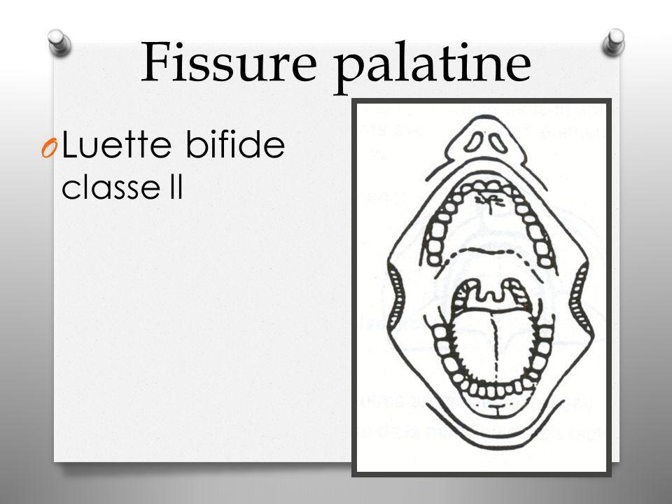 Fissure palatine Luette bifide classe ll