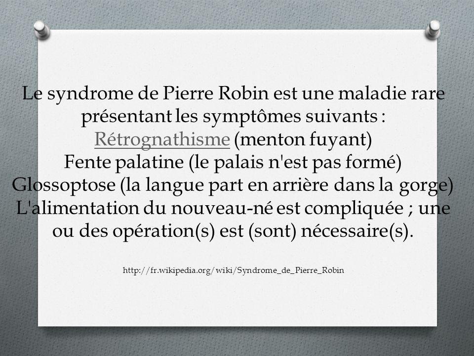 Le syndrome de Pierre Robin est une maladie rare présentant les symptômes suivants : Rétrognathisme (menton fuyant) Fente palatine (le palais n est pas formé) Glossoptose (la langue part en arrière dans la gorge) L alimentation du nouveau-né est compliquée ; une ou des opération(s) est (sont) nécessaire(s).