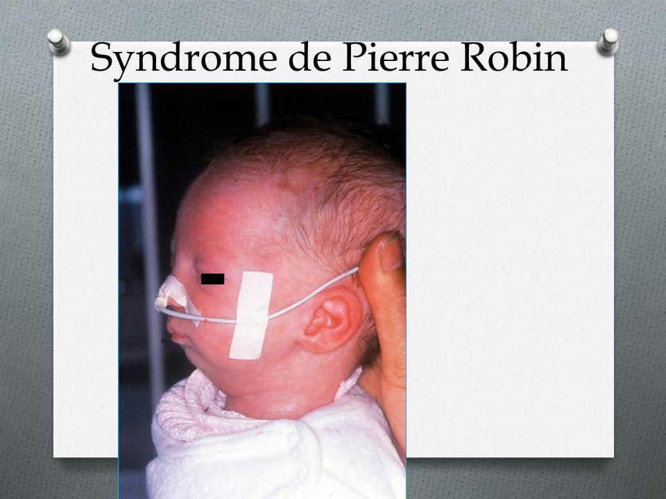 Syndrome de Pierre Robin