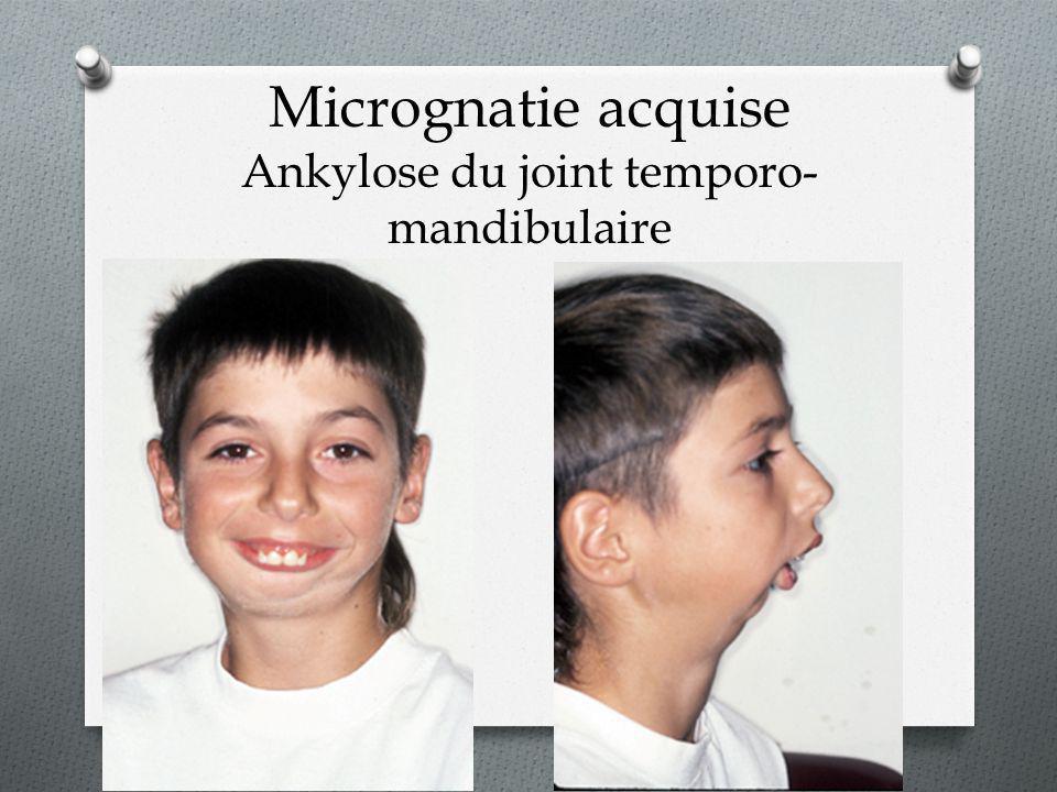 Micrognatie acquise Ankylose du joint temporo-mandibulaire