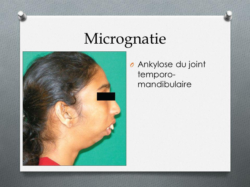 Micrognatie Ankylose du joint temporo-mandibulaire